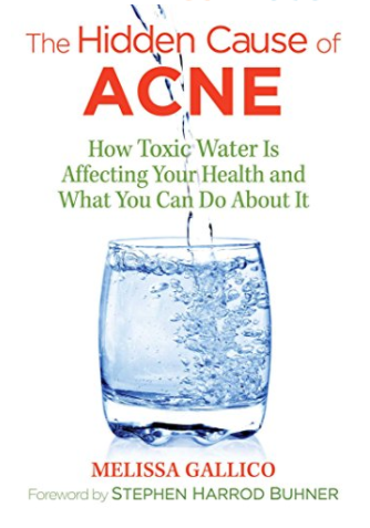 The Hidden Cause of Acne Melissa Gallico