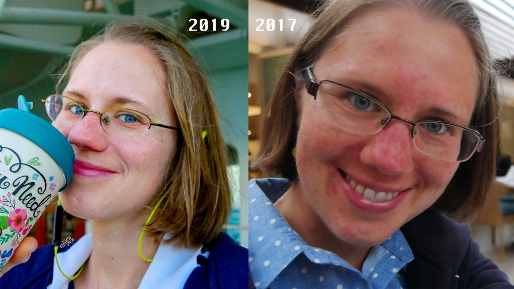 Rosacea Medical Medium Journey to Glow Before After Eva